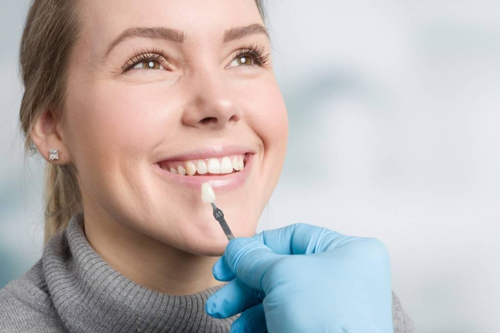 des facettes dentaires
